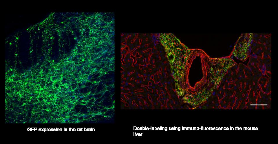 Immunofluorescence double label