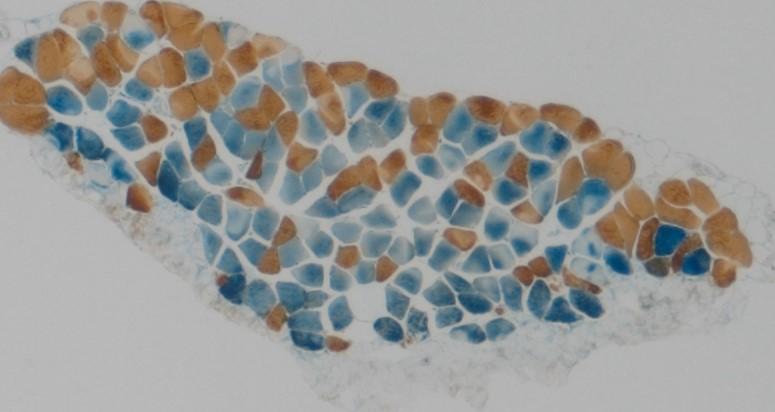 IHC chromogenic double label – muscle.tif
