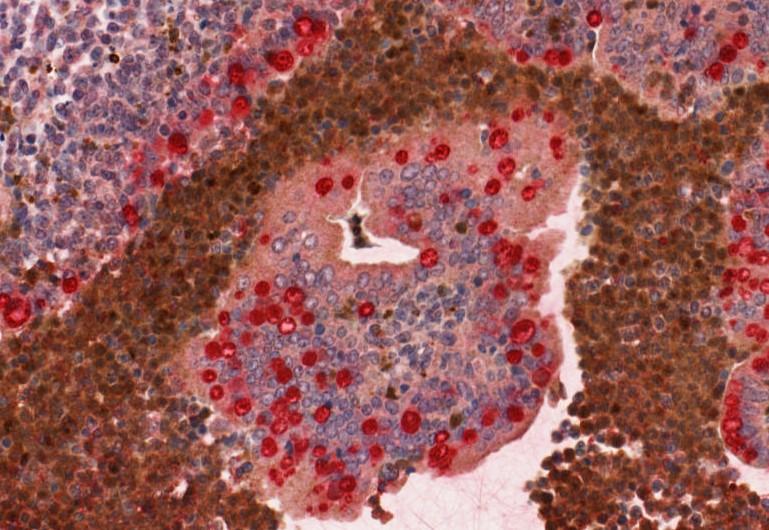 IHC chromogenic double label – repro.tif